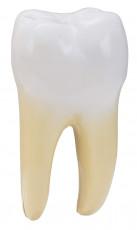 عکس دندان با ریشه
