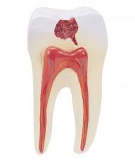 عکس دندان و عصب